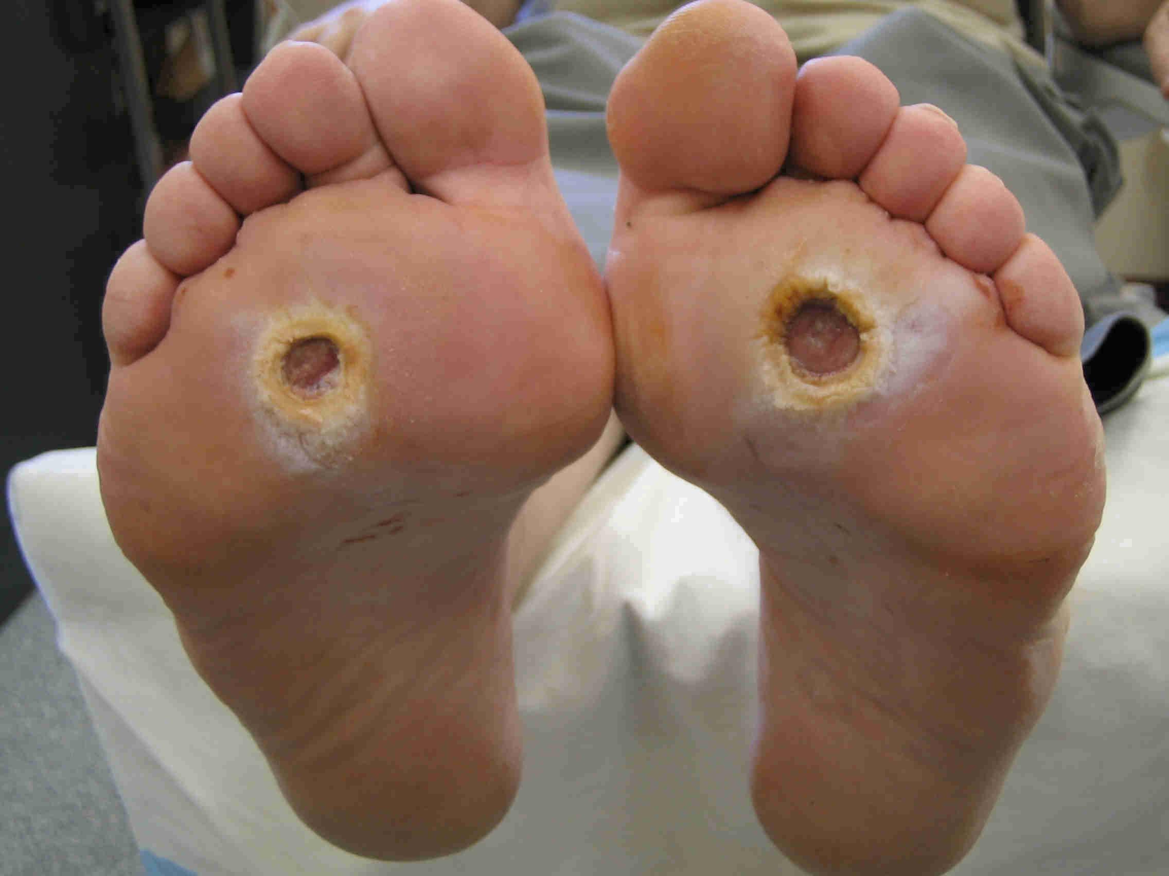 diabetul si pantofii